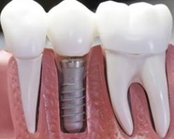 Имплантация зубов в Подмосковье без проблем с гарантией и по привлекательным ценам